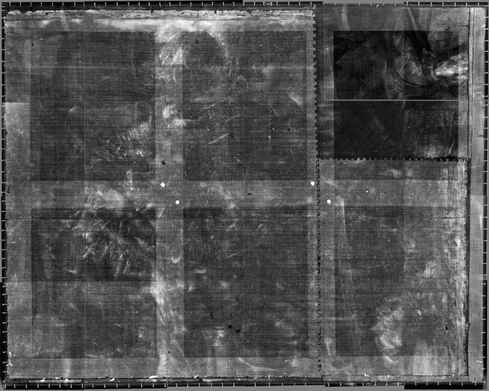 2. X-ray of the whole (assembly of 24 films).
